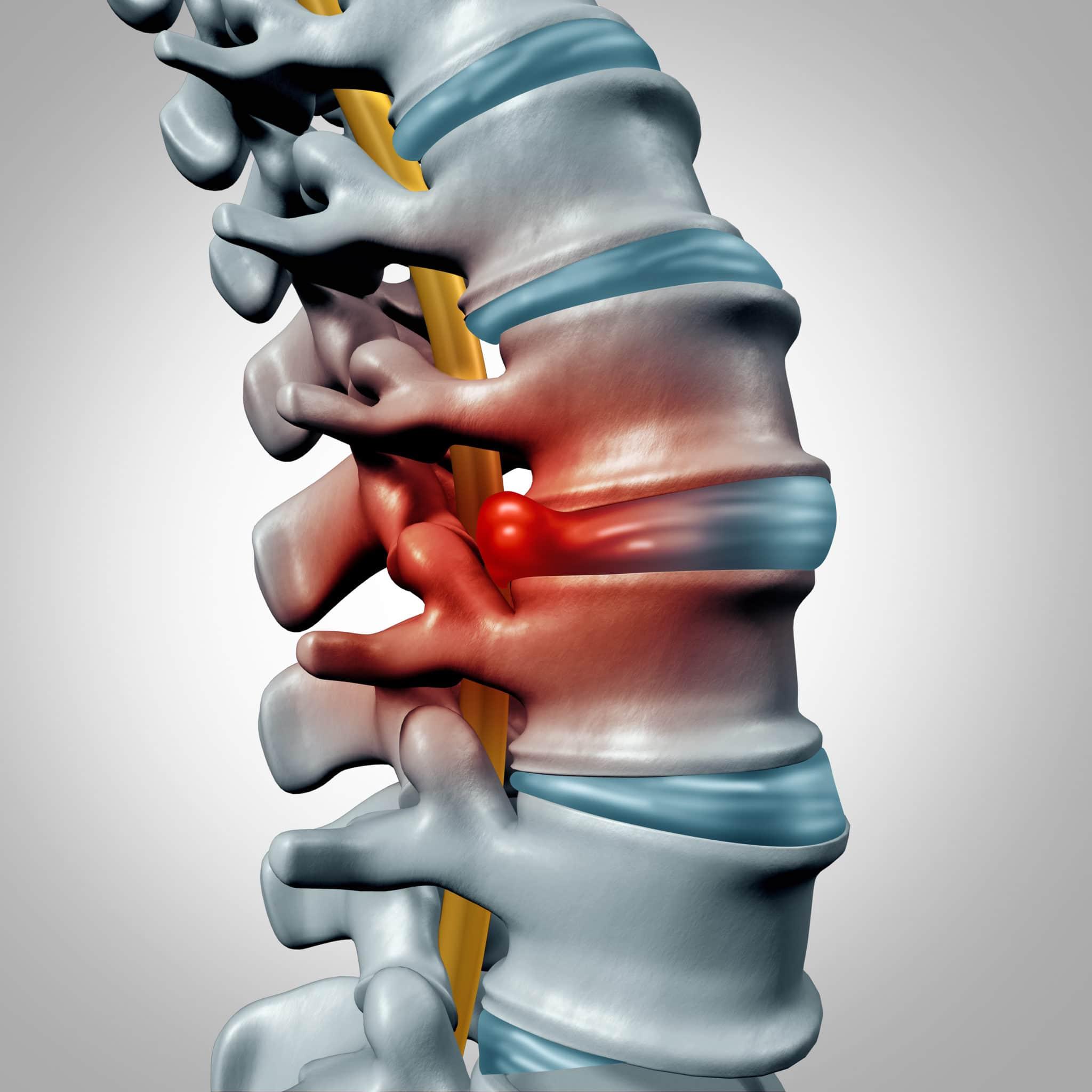 Slipped Disc - Mabuhay Chiropractic Clinics